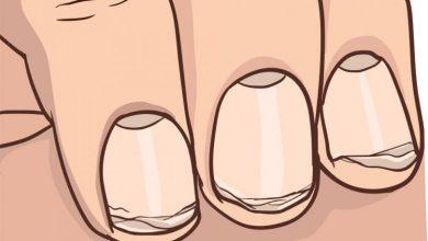 علت پوسته پوسته شدن ناخن ها و راه های درمان آن