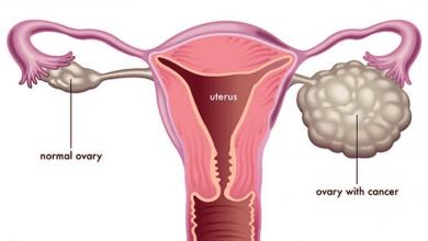 درمان تخمدان پلی کیستیک